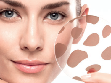Home Remedies For Removing Dark Spots